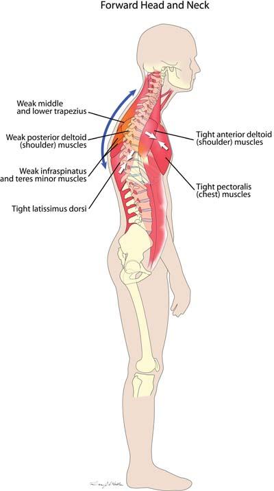 Trattamento e sintomi di osteochondrosis